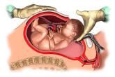 Как проходит операция кесарево сечение